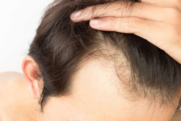 Answers to Your Hair Transplant Treatment Questions, By Dr. Shreyansh Talesra